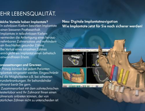 Für Sicherheit sorgen – Implantatversorgungen planen