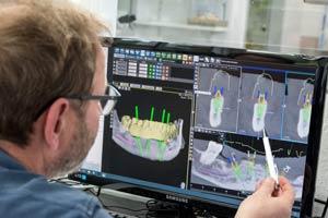 Zahntechniker sitzt vor Bildschirm mit 3D CAD CAM Planung und zeigt auf Roentgenbild von Zahn